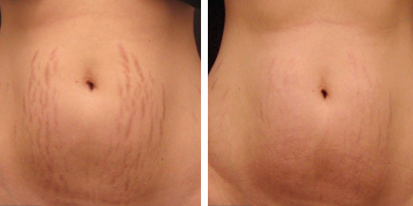 microneedle-los-angeles-before-and-after