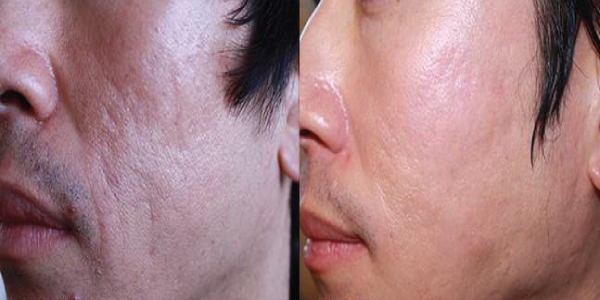 Microneedling-before-and-after-gallery