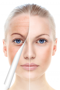 Microneedling, What to Think About Before A Treatment