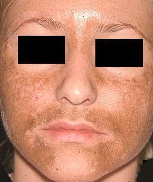 micro needle pigmentation melasma
