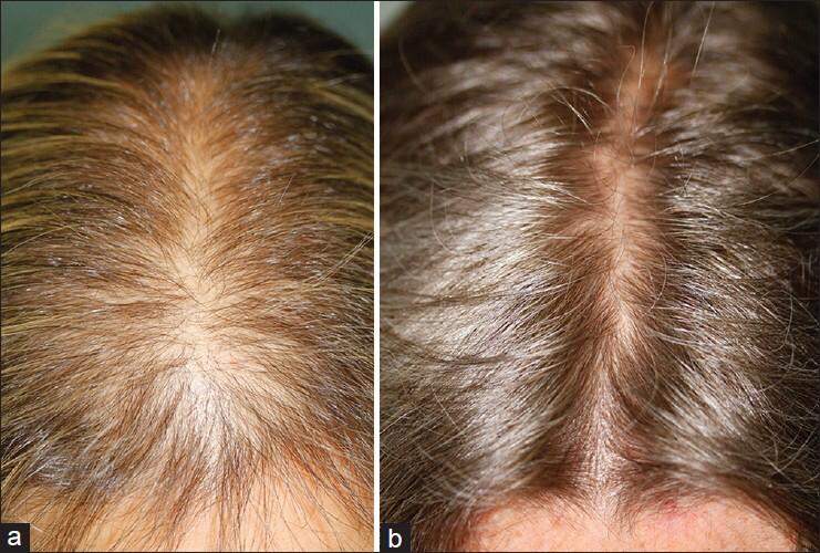 microneedling-hairloss1