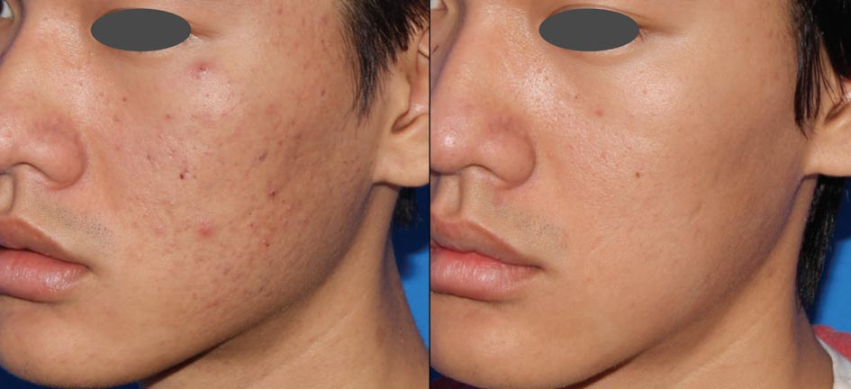 Microneedling For Acne Scars