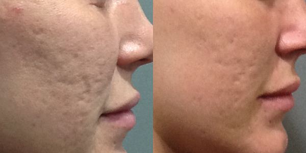 Top Solution for Acne Scarring